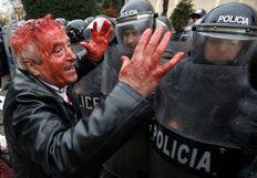 Τραυματισμένος διαδηλωτής στη χθεσινή αιματηρή διαδήλωση στα Τίρανα